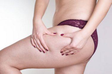 Femme qui se pince la cuisse pour faire apparaître sa cellulite