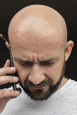 greffe de cheveux lyon, homme chauve